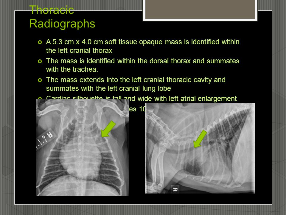 Thoracic Radiographs  A 5.3 cm x 4.0 cm soft tissue opaque mass is identified within the left cranial thorax  The mass is identified within the dorsal thorax and summates with the trachea.