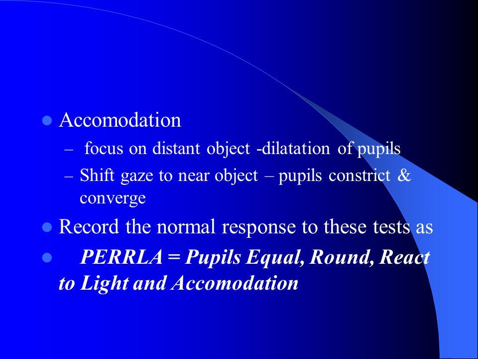 Pupillary Light Reflex – Darken room – Person gazes straight ahead – Advance light from the side Direct light reflex Consensual light reflex – Measure
