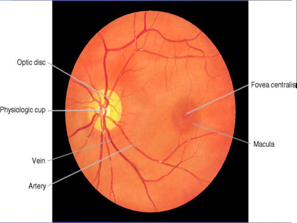 Macula & Fovea Centralis Last in Funduscopic exam – 1 DD in size – Darker than rest of fundus – Foveal light reflex – Exam last