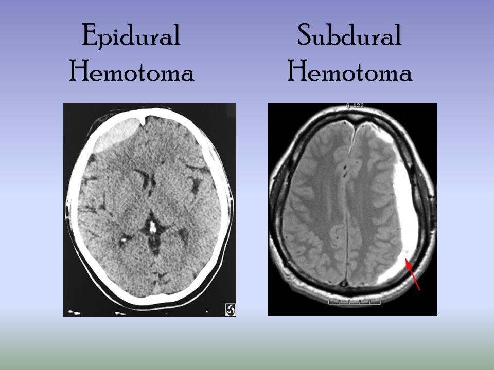 Subdural Hemotoma Epidural Hemotoma