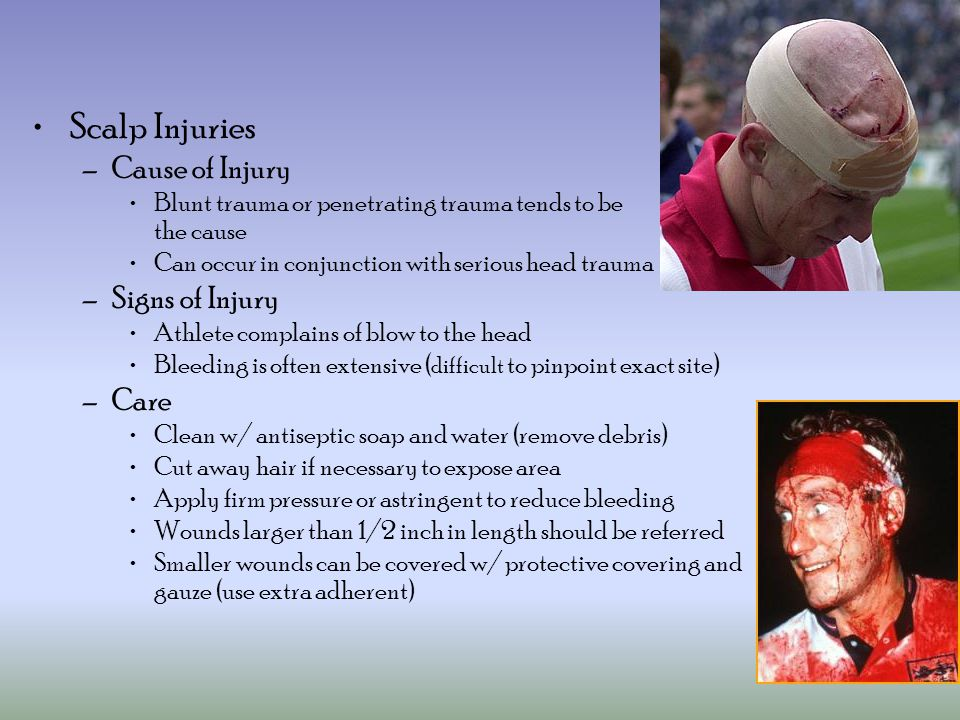 Scalp Injuries –Cause of Injury Blunt trauma or penetrating trauma tends to be the cause Can occur in conjunction with serious head trauma –Signs of Injury Athlete complains of blow to the head Bleeding is often extensive ( difficult to pinpoint exact site) –Care Clean w/ antiseptic soap and water (remove debris) Cut away hair if necessary to expose area Apply firm pressure or astringent to reduce bleeding Wounds larger than 1/2 inch in length should be referred Smaller wounds can be covered w/ protective covering and gauze (use extra adherent)