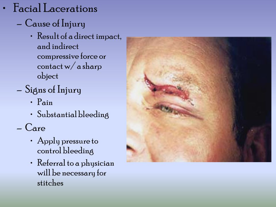Facial Lacerations –Cause of Injury Result of a direct impact, and indirect compressive force or contact w/ a sharp object –Signs of Injury Pain Substantial bleeding –Care Apply pressure to control bleeding Referral to a physician will be necessary for stitches