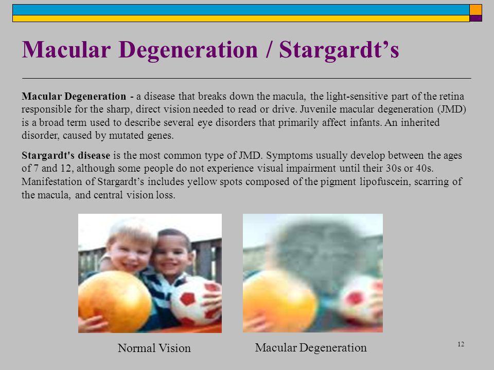 12 Macular Degeneration / Stargardt's Macular Degeneration - a disease that breaks down the macula, the light-sensitive part of the retina responsible