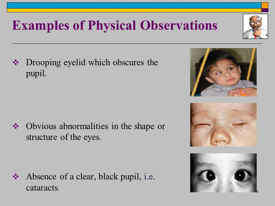 6 Examples of Physical Observations  Drooping eyelid which obscures the pupil.  Obvious abnormalities in the shape or structure of the eyes.  Absen
