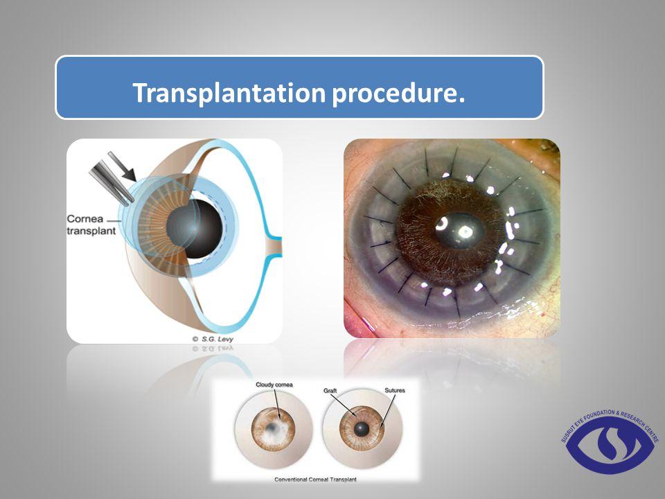 Transplantation procedure.