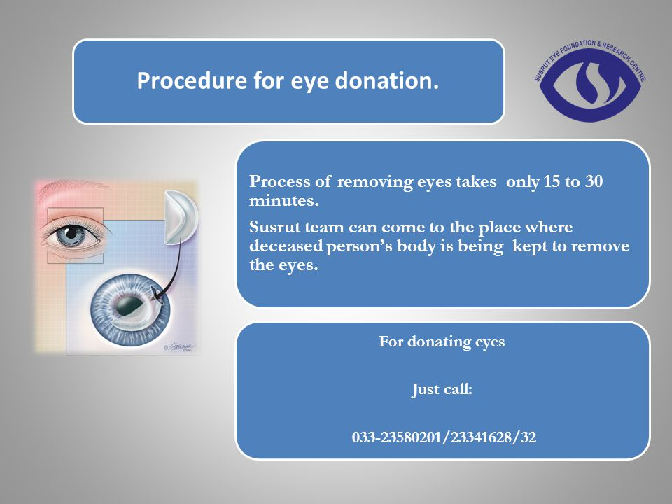 Procedure for eye donation. Process of removing eyes takes only 15 to 30 minutes.
