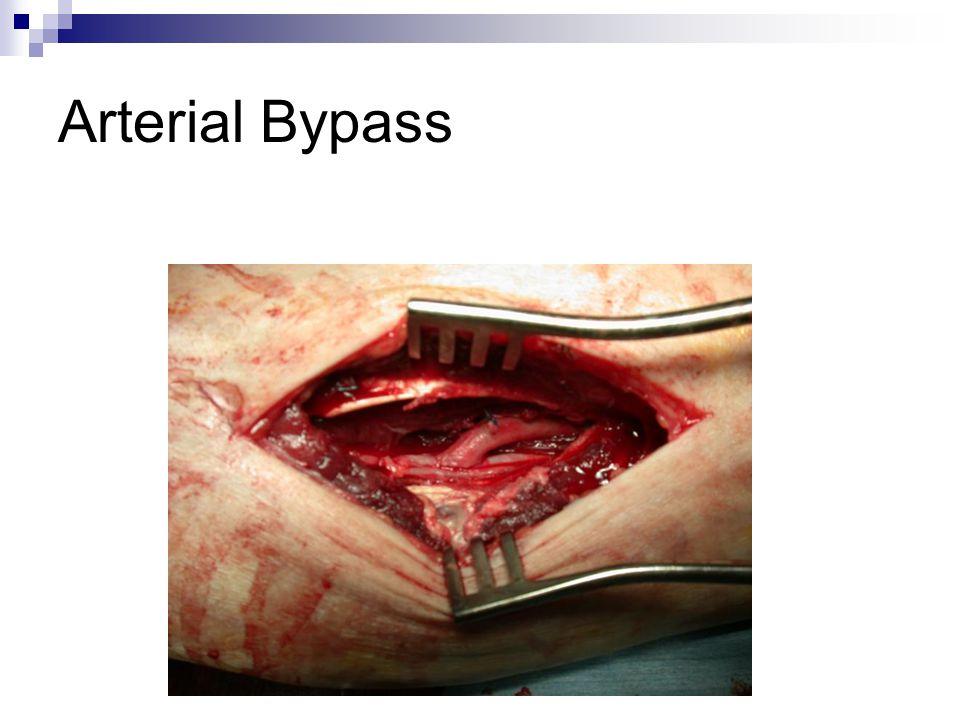 Arterial Bypass