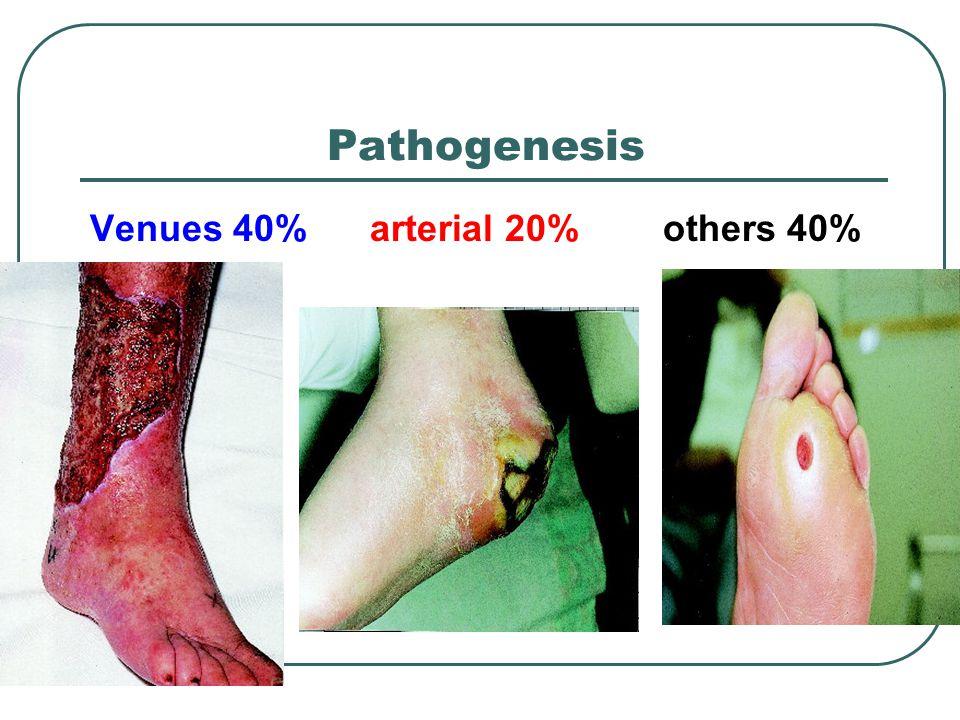 Pathogenesis Venues 40% arterial 20% others 40%