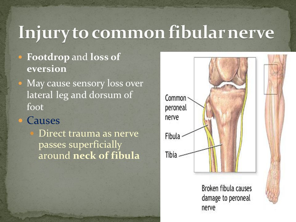 Footdrop and loss of eversion May cause sensory loss over lateral leg and dorsum of foot Causes Direct trauma as nerve passes superficially around neck of fibula