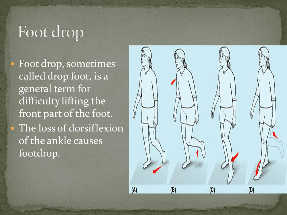 Foot drop, sometimes called drop foot, is a general term for difficulty lifting the front part of the foot.