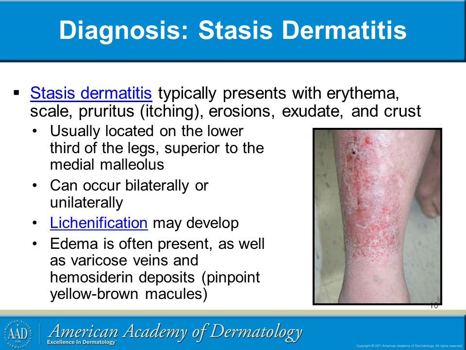 Diagnosis: Stasis Dermatitis  Stasis dermatitis typically presents with erythema, scale, pruritus (itching), erosions, exudate, and crust Stasis dermatitis Usually located on the lower third of the legs, superior to the medial malleolus Can occur bilaterally or unilaterally Lichenification may developLichenification Edema is often present, as well as varicose veins and hemosiderin deposits (pinpoint yellow-brown macules) 10
