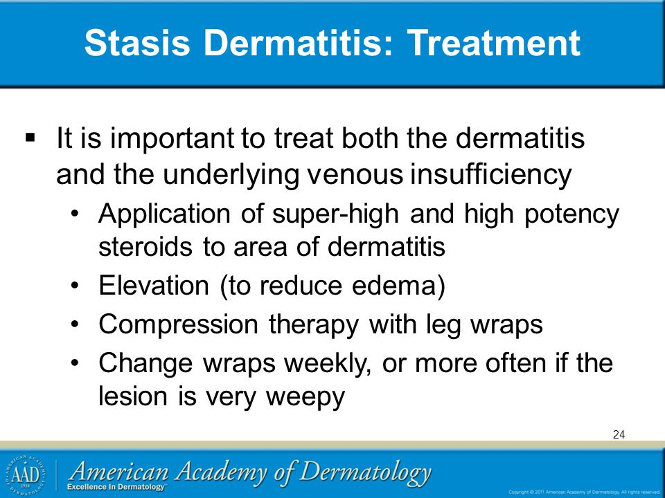 Stasis Dermatitis: Treatment  It is important to treat both the dermatitis and the underlying venous insufficiency Application of super-high and high potency steroids to area of dermatitis Elevation (to reduce edema) Compression therapy with leg wraps Change wraps weekly, or more often if the lesion is very weepy 24