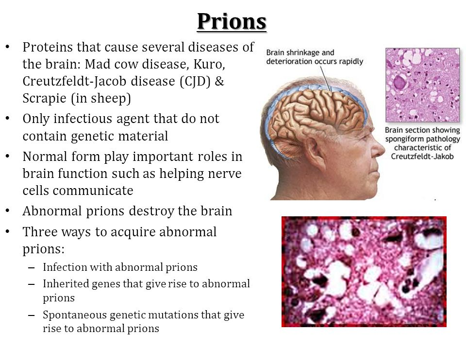 Prions Proteins that cause several diseases of the brain: Mad cow disease, Kuro, Creutzfeldt-Jacob disease (CJD) & Scrapie (in sheep) Only infectious agent that do not contain genetic material Normal form play important roles in brain function such as helping nerve cells communicate Abnormal prions destroy the brain Three ways to acquire abnormal prions: – Infection with abnormal prions – Inherited genes that give rise to abnormal prions – Spontaneous genetic mutations that give rise to abnormal prions