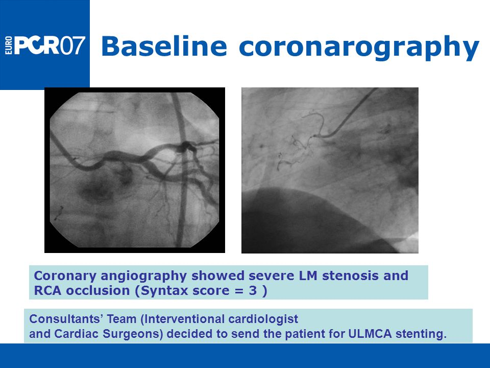 Baseline coronarography Coronary angiography showed severe LM stenosis and RCA occlusion (Syntax score = 3 ) Consultants' Team (Interventional cardiol