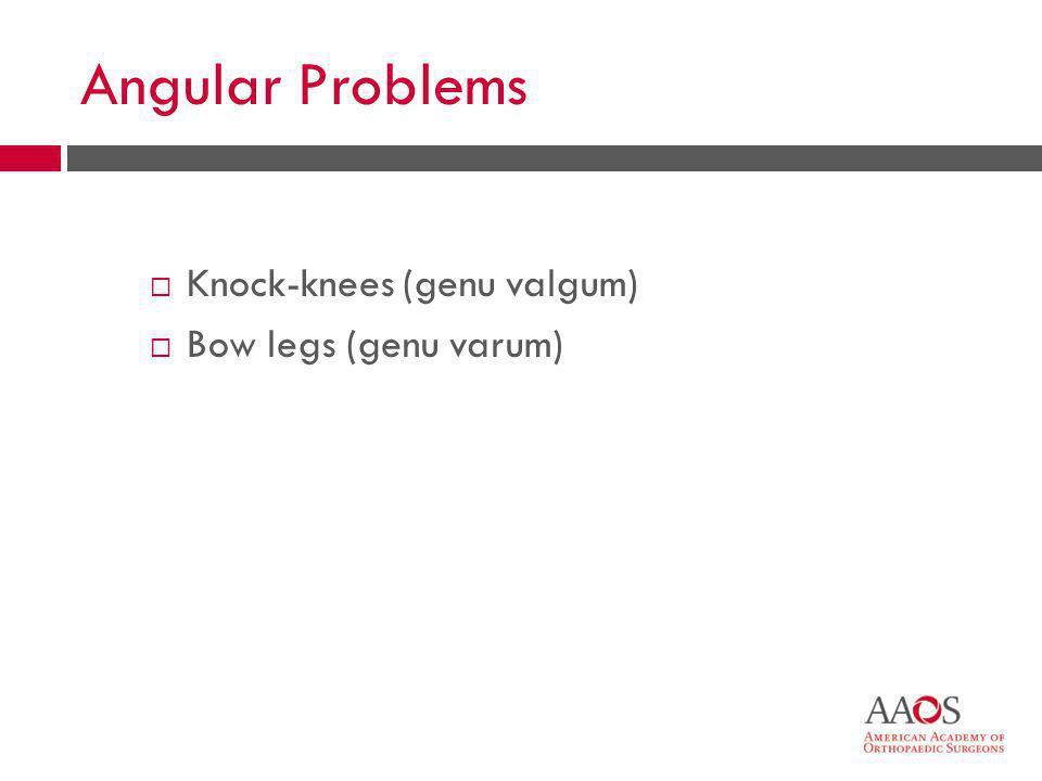 26 Angular Problems  Knock-knees (genu valgum)  Bow legs (genu varum)