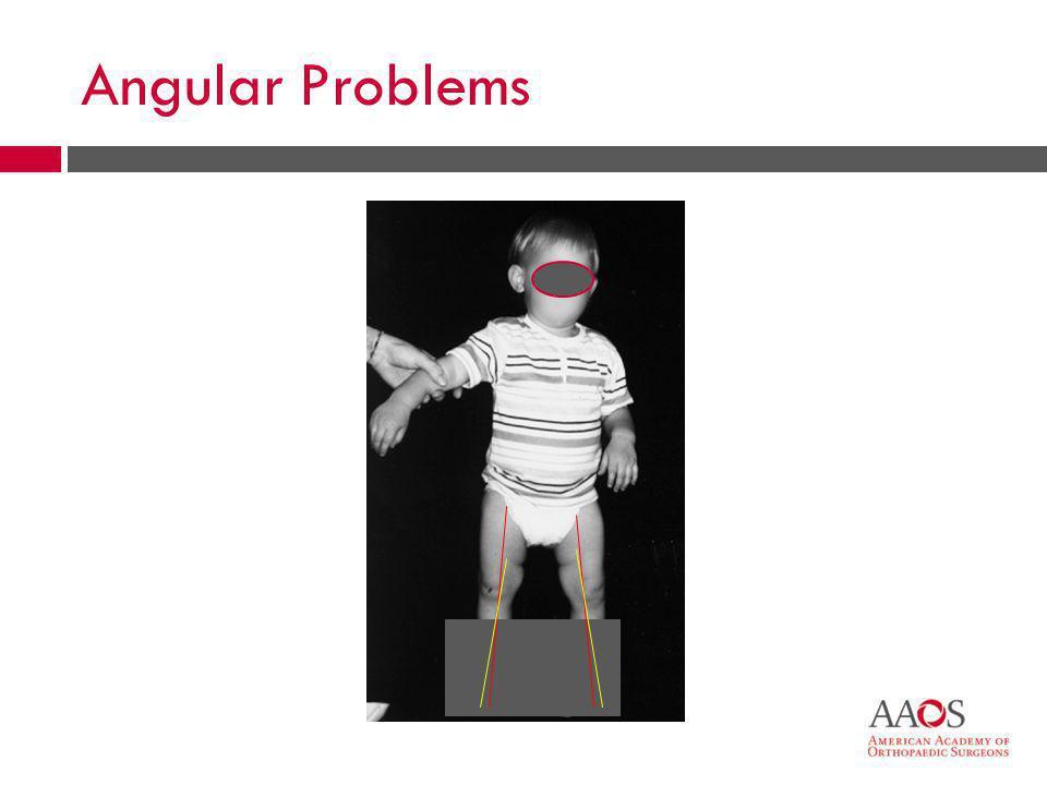 29 Angular Problems