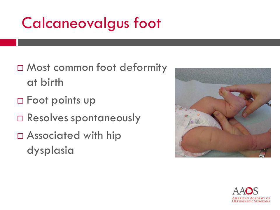 41 Calcaneovalgus foot  Most common foot deformity at birth  Foot points up  Resolves spontaneously  Associated with hip dysplasia