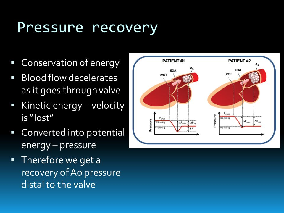 Pressure recovery  Conservation of energy  Blood flow decelerates as it goes through valve  Kinetic energy - velocity is lost  Converted into potential energy – pressure  Therefore we get a recovery of Ao pressure distal to the valve