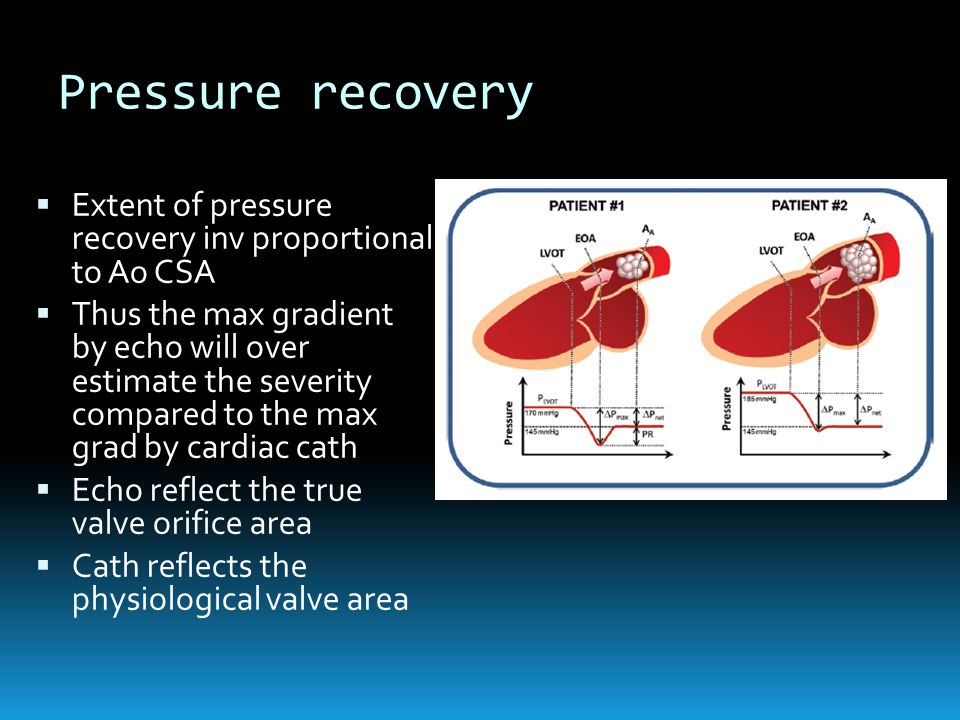 Pressure recovery  Extent of pressure recovery inv proportional to Ao CSA  Thus the max gradient by echo will over estimate the severity compared to