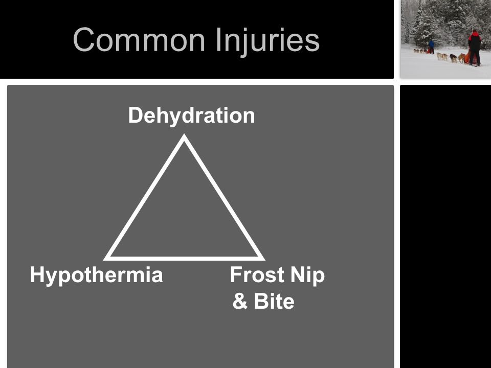 The Frost Brothers 1 st Degree or Frost Nip Top layers of the skin freezes 2 nd Degree Frost Bite or Superficial Most of skin layers freeze 3 rd Degree Frost Bite or Deep All skin & tissue layers freeze