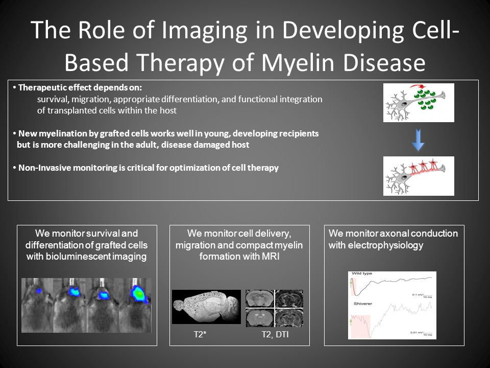 The Role of Imaging in Developing Cell- Based Therapy of Myelin Disease Therapeutic effect depends on: survival, migration, appropriate differentiation, and functional integration of transplanted cells within the host New myelination by grafted cells works well in young, developing recipients but is more challenging in the adult, disease damaged host Non-Invasive monitoring is critical for optimization of cell therapy We monitor survival and differentiation of grafted cells with bioluminescent imaging We monitor cell delivery, migration and compact myelin formation with MRI We monitor axonal conduction with electrophysiology T2* T2, DTI