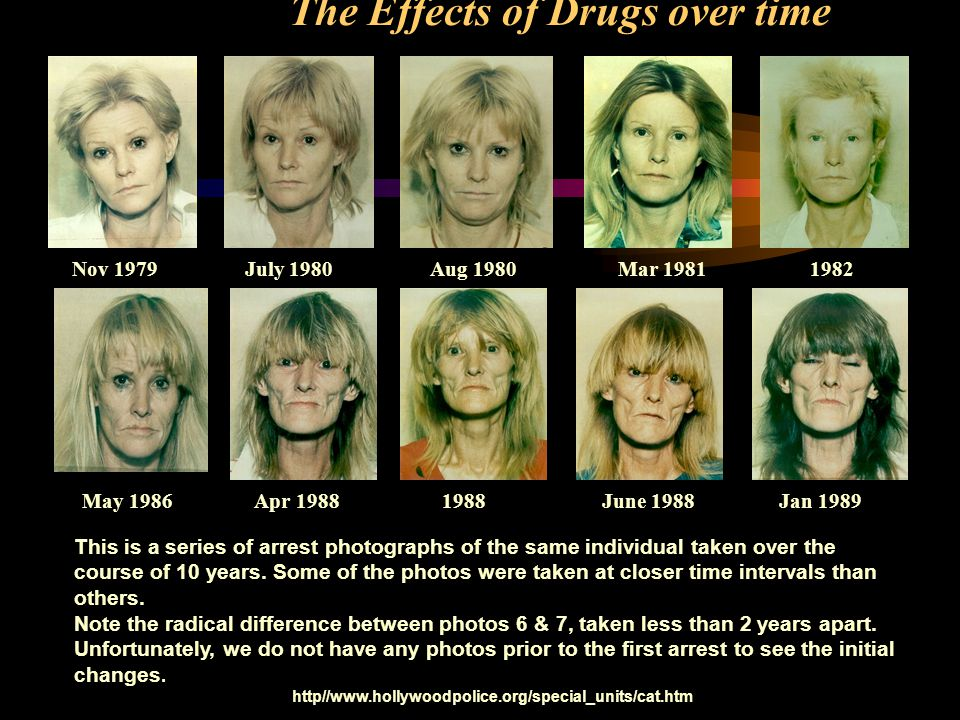 The Effects of Drugs over time Nov 1979 July 1980 Aug 1980Mar 19811982 May 1986 Apr 1988 1988 June 1988 Jan 1989 This is a series of arrest photograph