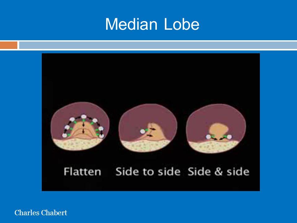 Median Lobe Charles Chabert