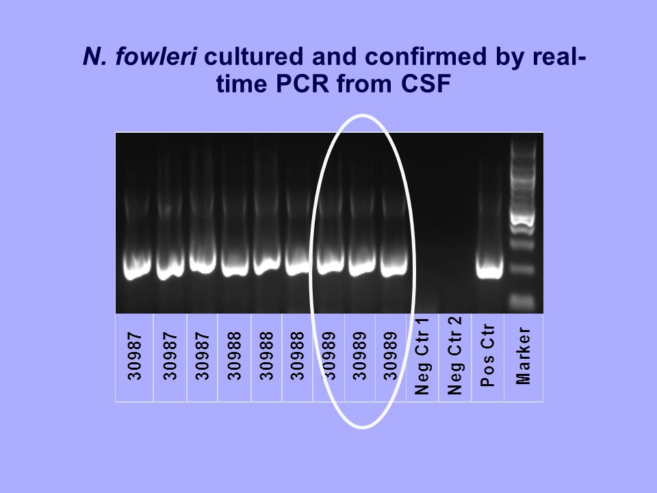 N. fowleri cultured and confirmed by real- time PCR from CSF
