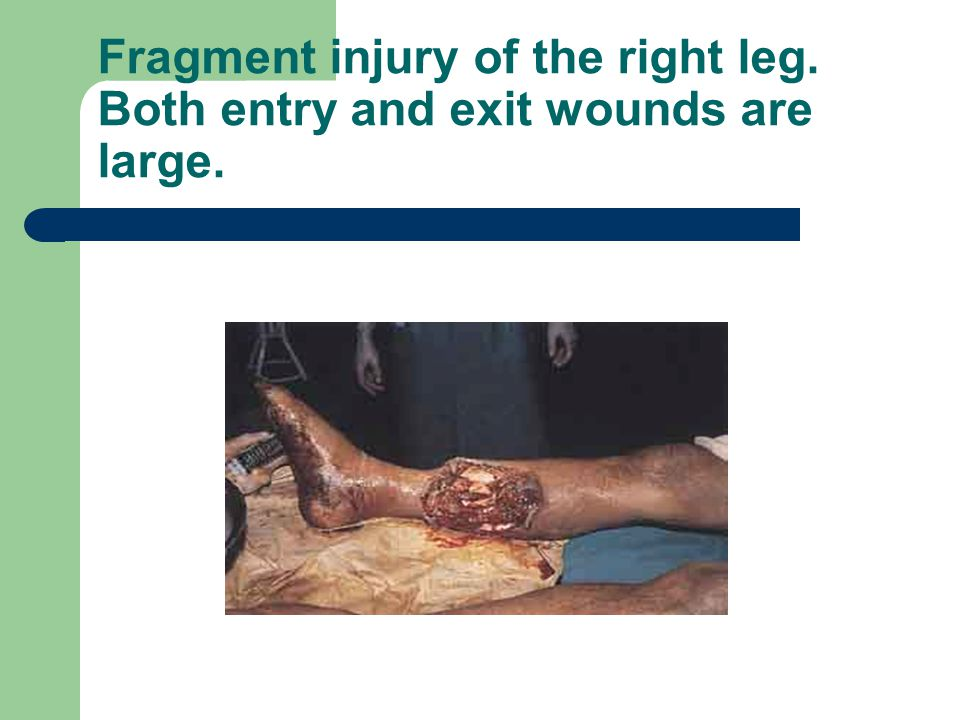 Fragment injury of the right leg. Both entry and exit wounds are large.
