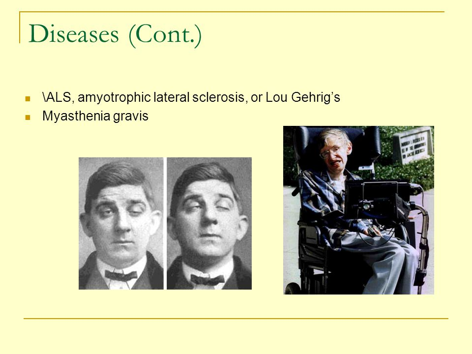 Diseases (Cont.) \ALS, amyotrophic lateral sclerosis, or Lou Gehrig's Myasthenia gravis