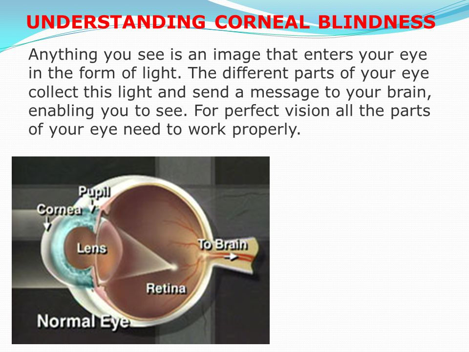 It is therefore critical, especially in the developing world, to set up eye banks of international standards that will pay particular attention to three primary objectives: To increase the volume of corneal tissue available for transplantation To apply the strictest medical standards in procuring and preserving donor tissues, and To maintain the highest levels of professionalism at every stage in the process of eye banking.