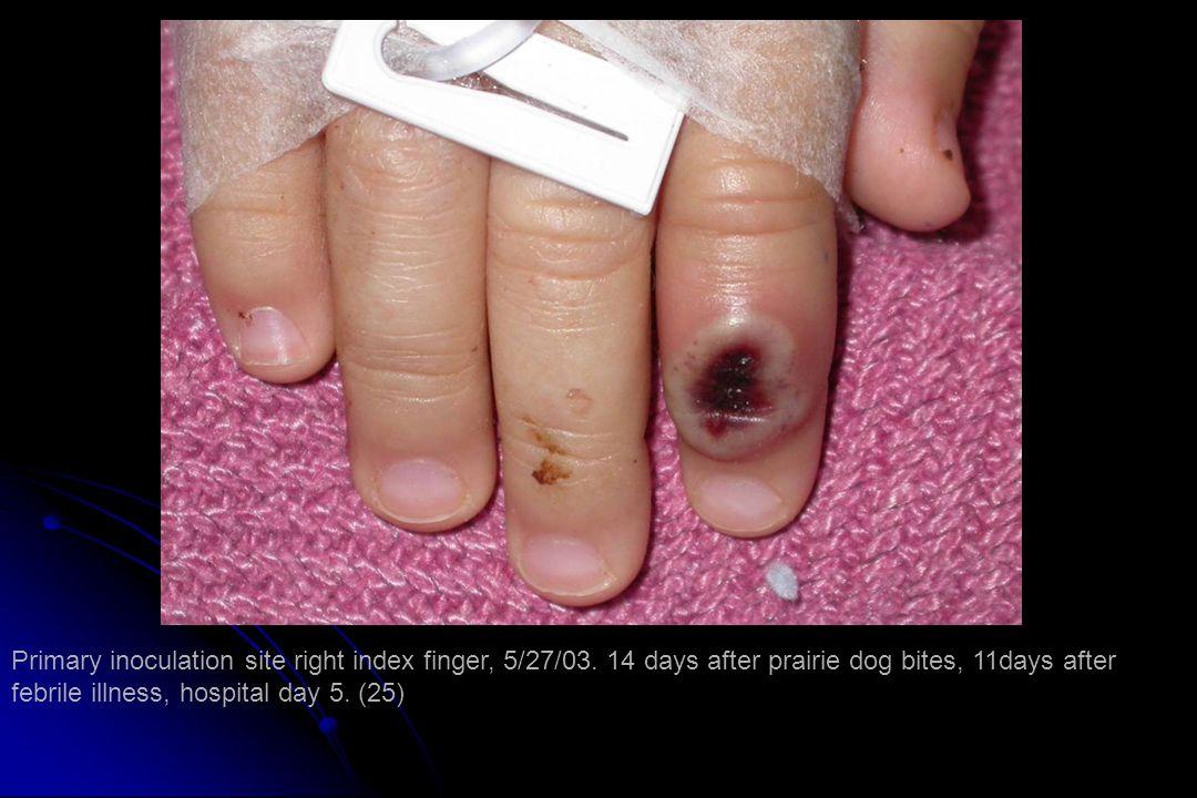 Primary inoculation site right index finger, 5/27/03.