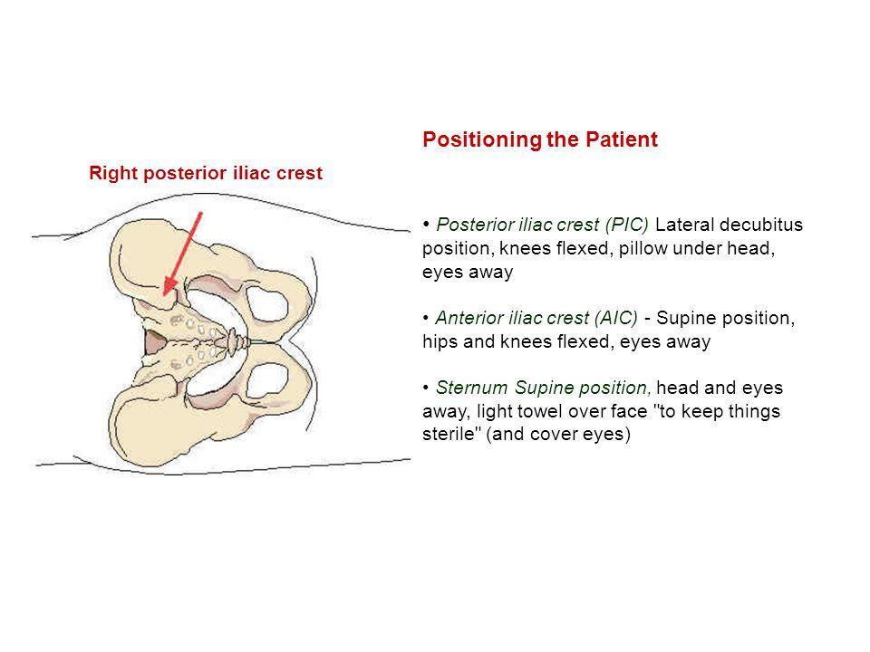 Positioning the Patient Posterior iliac crest (PIC) Lateral decubitus position, knees flexed, pillow under head, eyes away Anterior iliac crest (AIC)