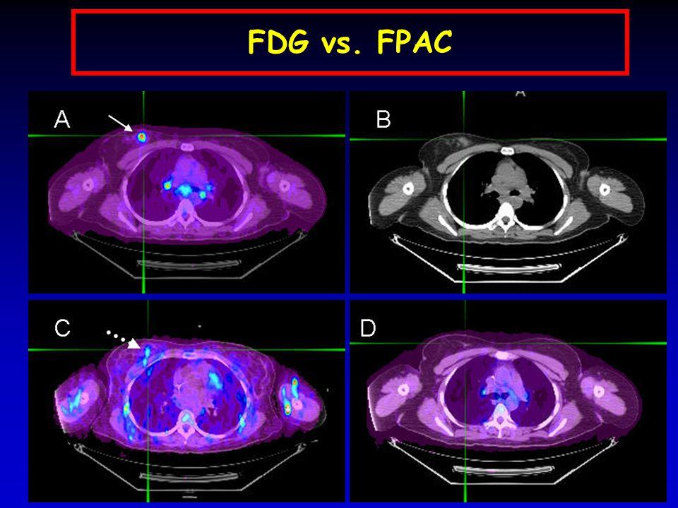 FDG vs. FPAC