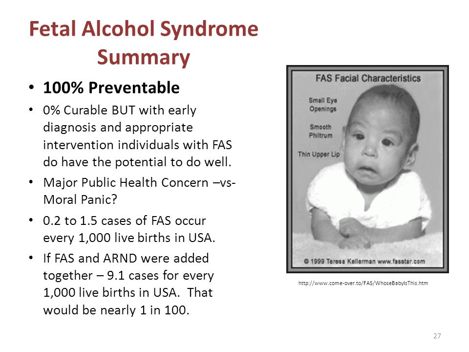 Fetal Alcohol Syndrome Summary 100% Preventable 0% Curable BUT with early diagnosis and appropriate intervention individuals with FAS do have the pote