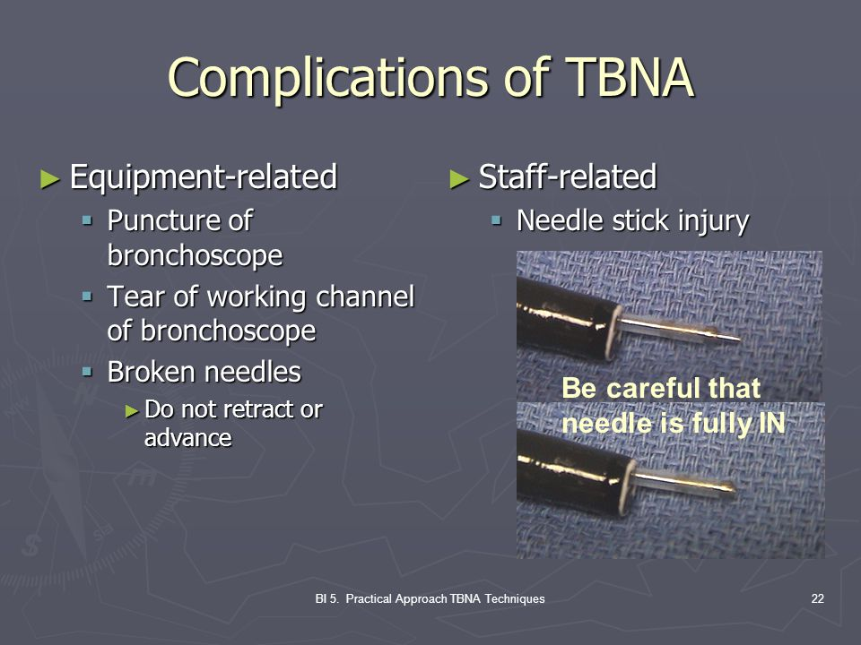 BI 5. Practical Approach TBNA Techniques22 Complications of TBNA ► Equipment-related  Puncture of bronchoscope  Tear of working channel of bronchosc