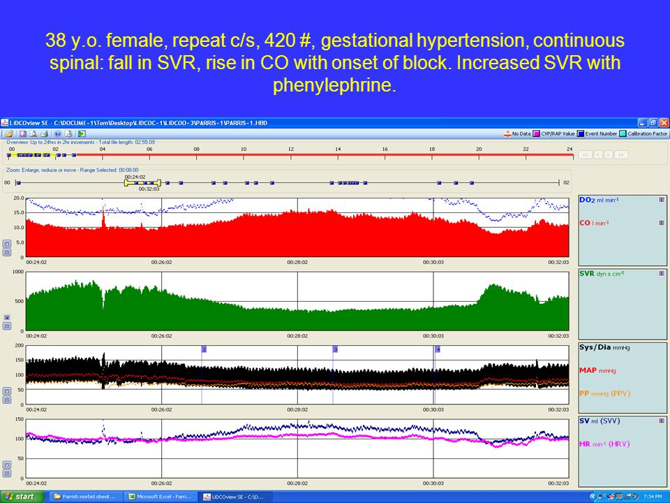 38 y.o. female, repeat c/s, 420 #, gestational hypertension, continuous spinal: fall in SVR, rise in CO with onset of block. Increased SVR with phenyl