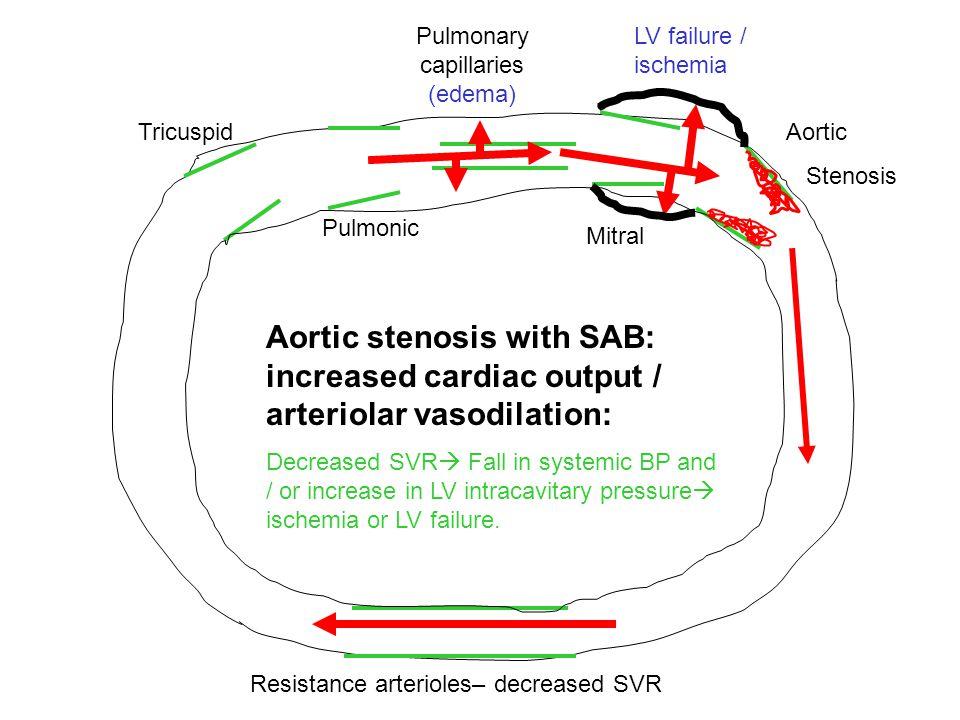 Tricuspid Pulmonic Pulmonary capillaries (edema) Mitral Aortic Stenosis Resistance arterioles– decreased SVR Aortic stenosis with SAB: increased cardi
