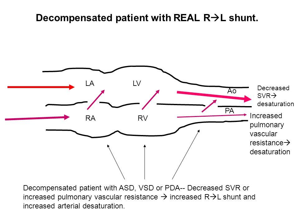 LA RA LV RV Decreased SVR  desaturation Increased pulmonary vascular resistance  desaturation Ao PA Decompensated patient with ASD, VSD or PDA-- Dec