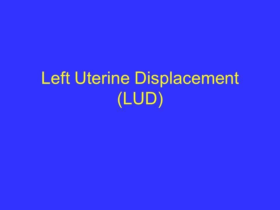 Left Uterine Displacement (LUD)