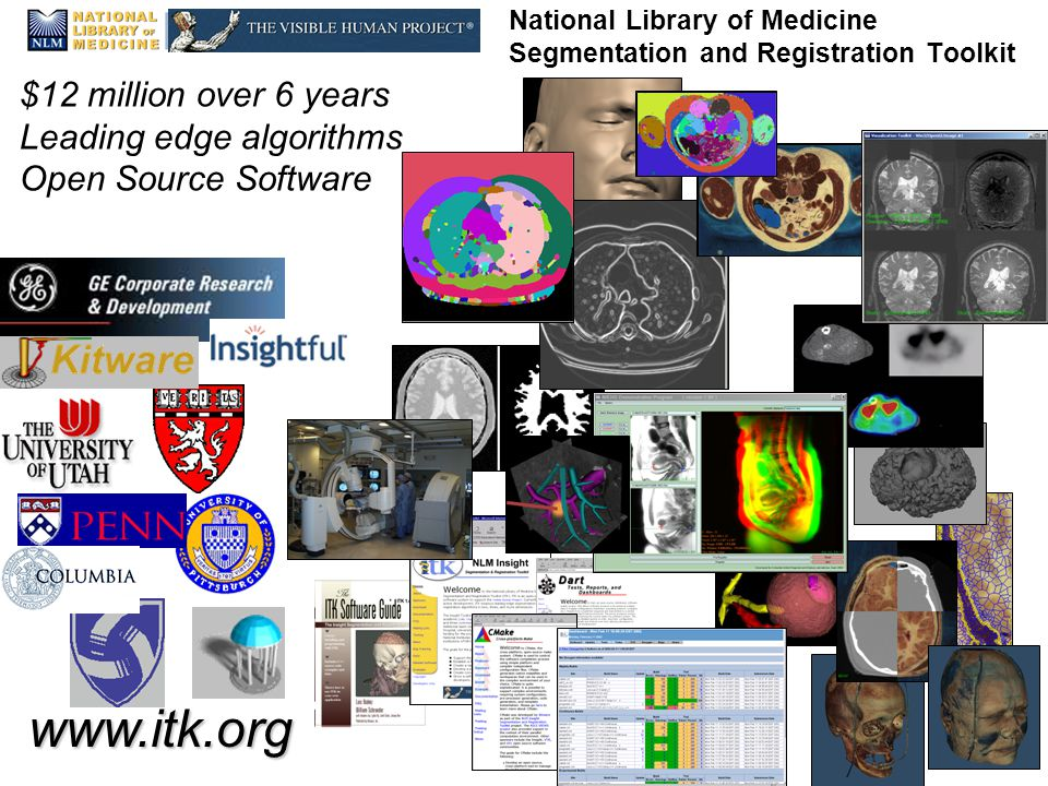 National Alliance for Medical Image Computing   National Library of Medicine Segmentation and Registration Toolkit $12 million over 6 years Leading edge algorithms Open Source Software