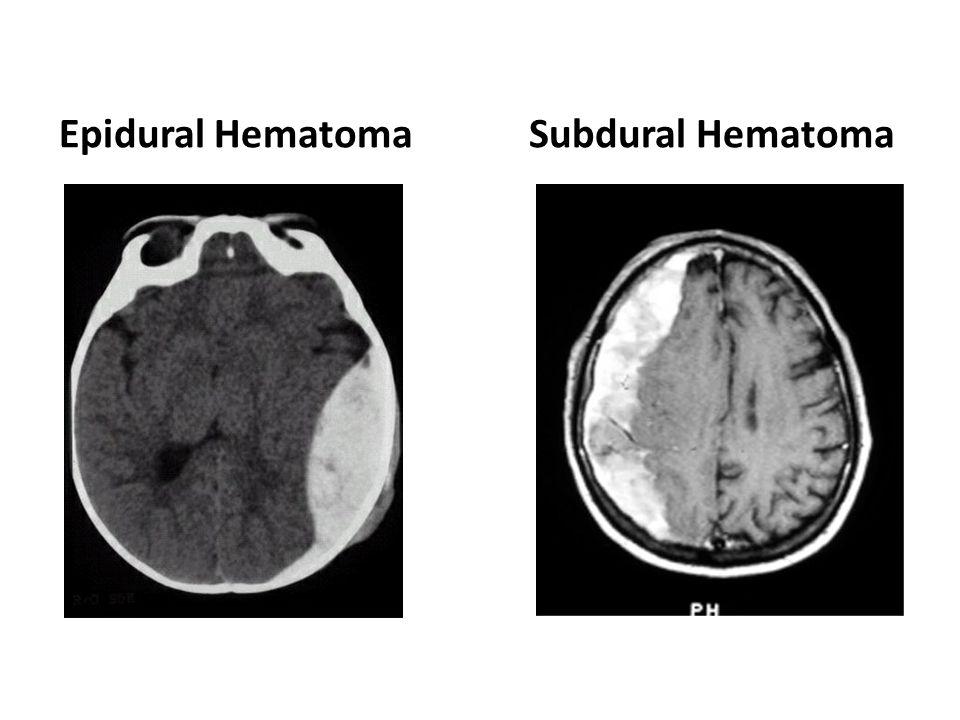 Epidural Hematoma Subdural Hematoma