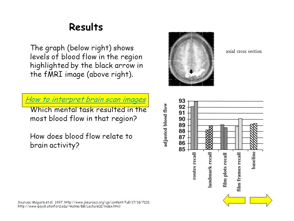 Results The graph (below right) shows levels of blood flow in the region highlighted by the black arrow in the fMRI image (above right).