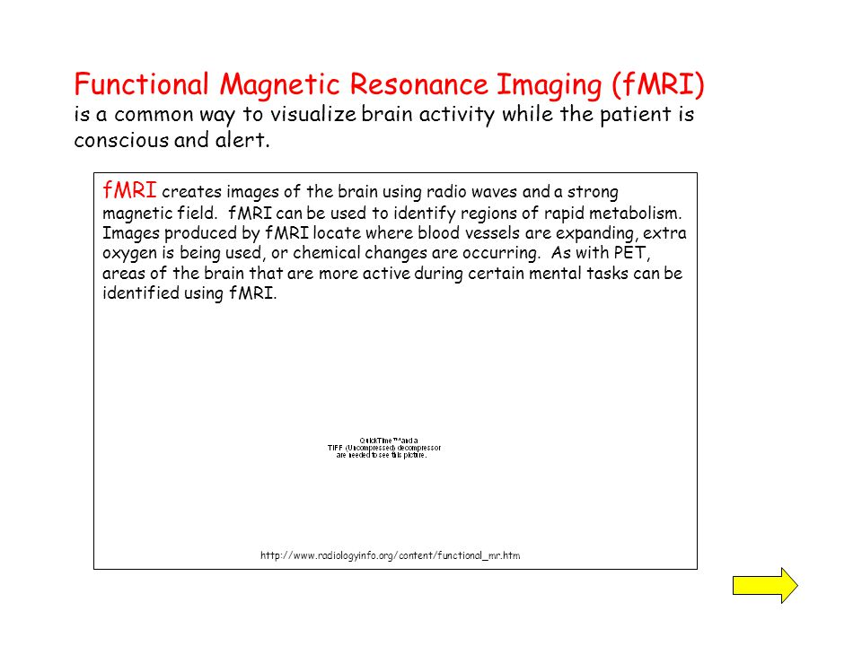 Functional Magnetic Resonance Imaging (fMRI) is a common way to visualize brain activity while the patient is conscious and alert.