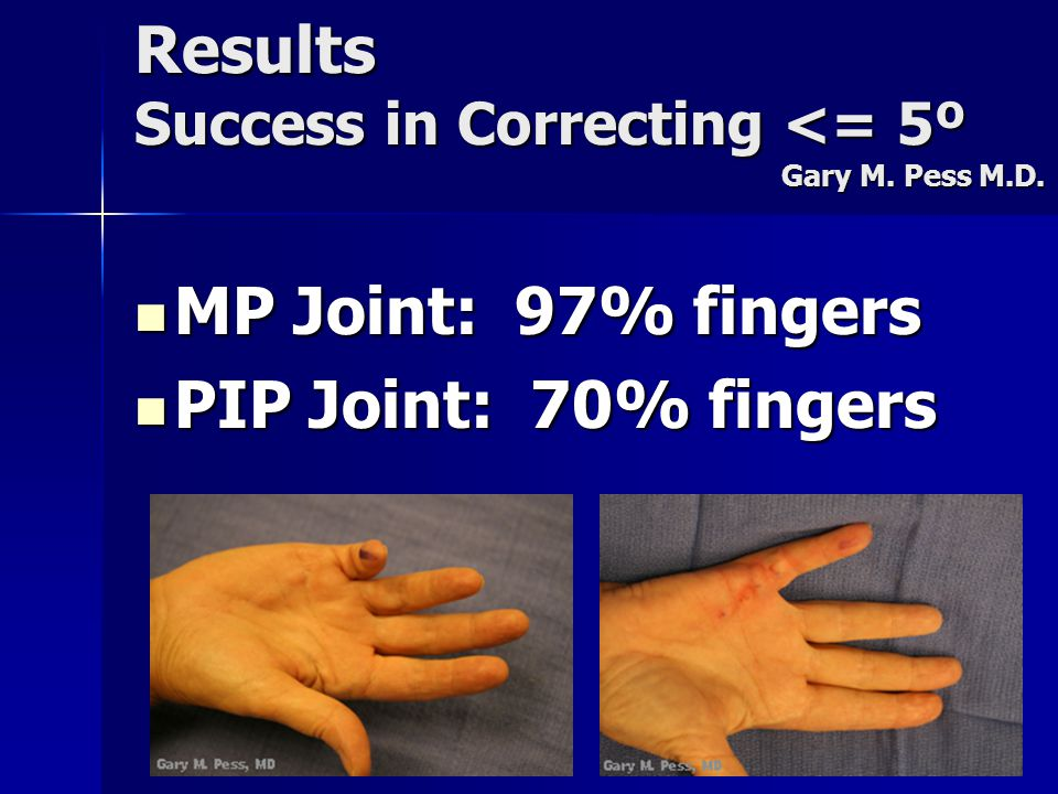 Results Success in Correcting <= 5º Gary M. Pess M.D. MP Joint: 97% fingers MP Joint: 97% fingers PIP Joint: 70% fingers PIP Joint: 70% fingers