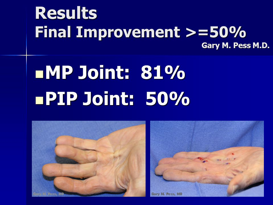 Results Final Improvement >=50% Gary M. Pess M.D. MP Joint: 81% MP Joint: 81% PIP Joint: 50% PIP Joint: 50%