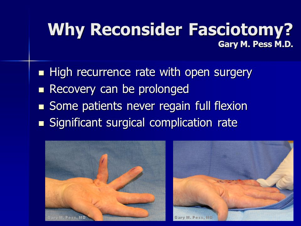 Why Reconsider Fasciotomy? Gary M. Pess M.D. High recurrence rate with open surgery High recurrence rate with open surgery Recovery can be prolonged R