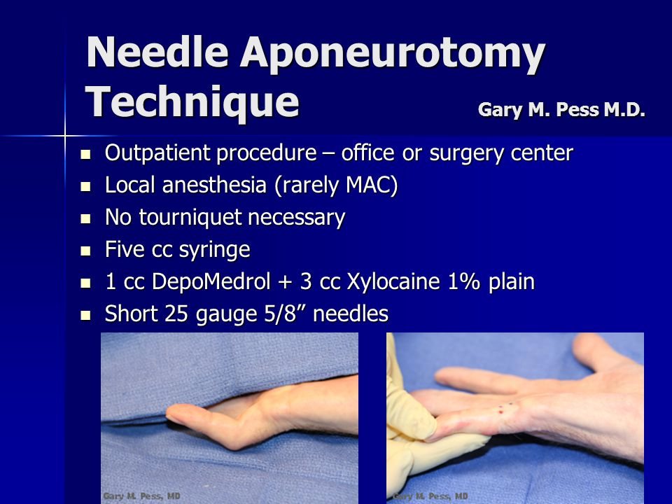 Needle Aponeurotomy Technique Gary M. Pess M.D. Outpatient procedure – office or surgery center Outpatient procedure – office or surgery center Local