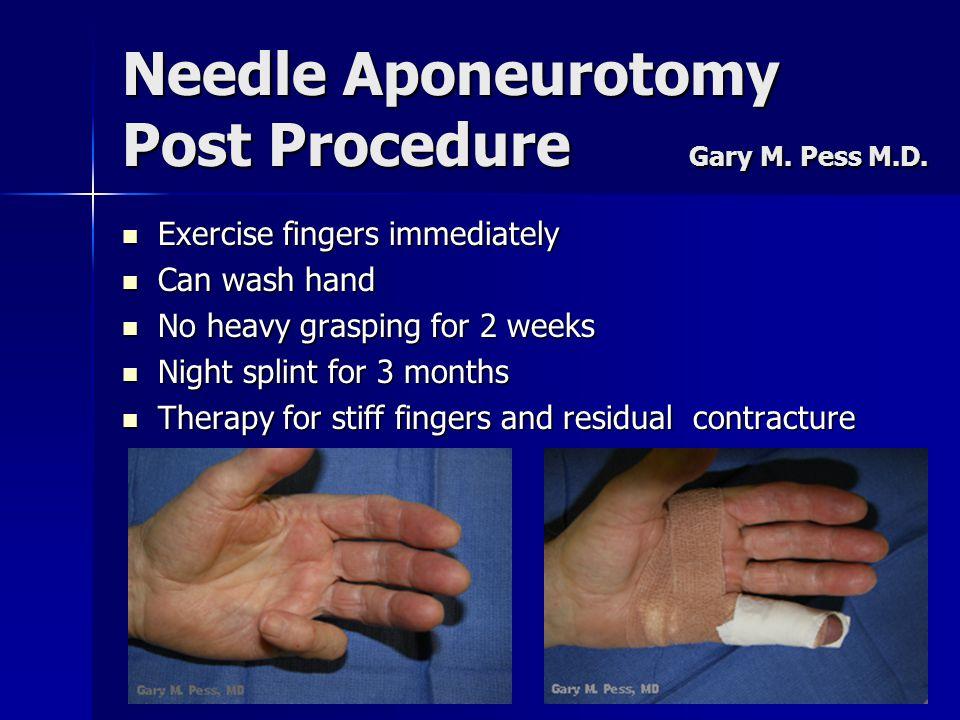 Needle Aponeurotomy Post Procedure Gary M. Pess M.D. Exercise fingers immediately Exercise fingers immediately Can wash hand Can wash hand No heavy gr