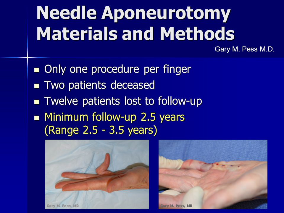 Needle Aponeurotomy Materials and Methods Only one procedure per finger Only one procedure per finger Two patients deceased Two patients deceased Twel